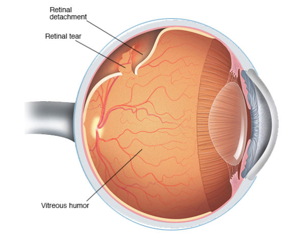 Posterior Vitreous Detachment (PVD) and Retinal Detachment